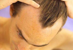 A hajhullás elleni vitamin fontos szerepe